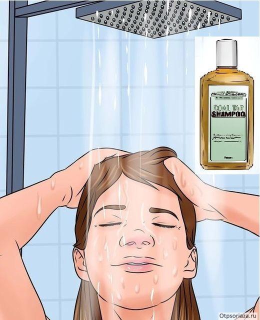 Псориаз на голове симптомы причины возникновения как лечить
