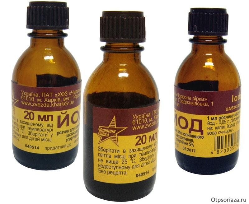 Лечение молочницы содой и йодом отзывы