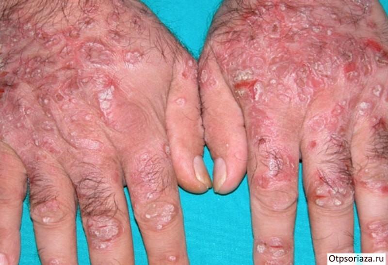 Почему возникает и как диагностируется лечится внутренний варикоз