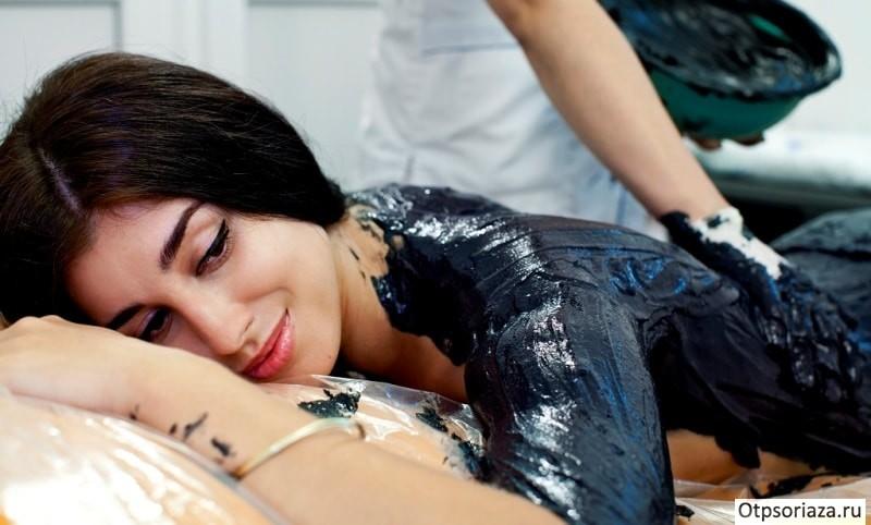 Лечение псориаза в санаториях России