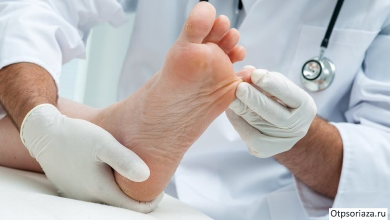 Осмотр ногтей у дерматолога