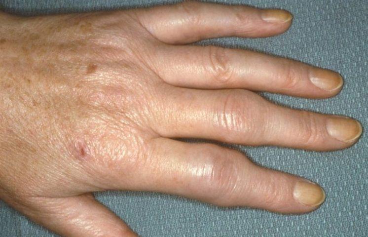 Псориаз Барбера Лечение