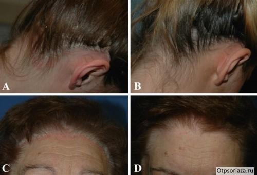 Лечение псориаза волосистой части головы в домашних условиях