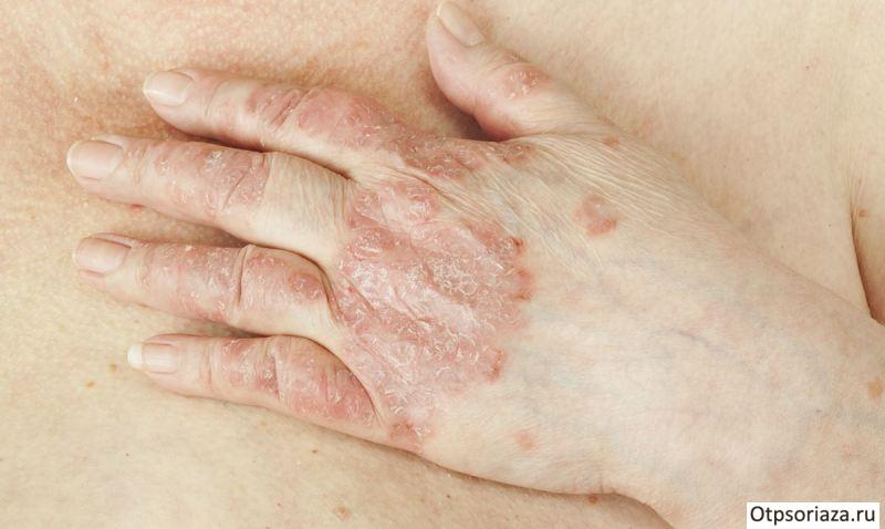 Причины обострения псориаза