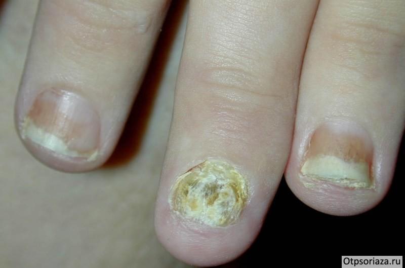 Зуд между пальцами ног чем лечить почему чешется и облазит кожа