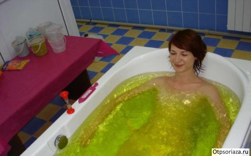Ванны при псориазе в домашних условиях: лечение и отзывы