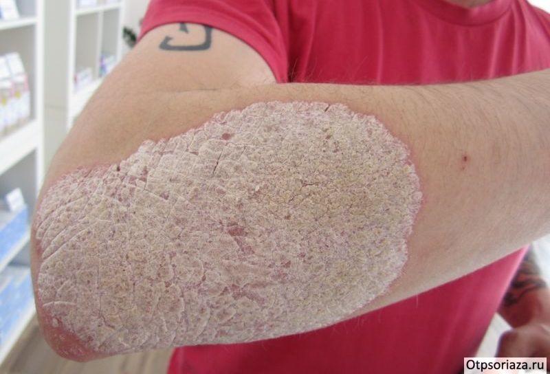 Лечение псориаза различных форм. Как вылечить псориаз дома
