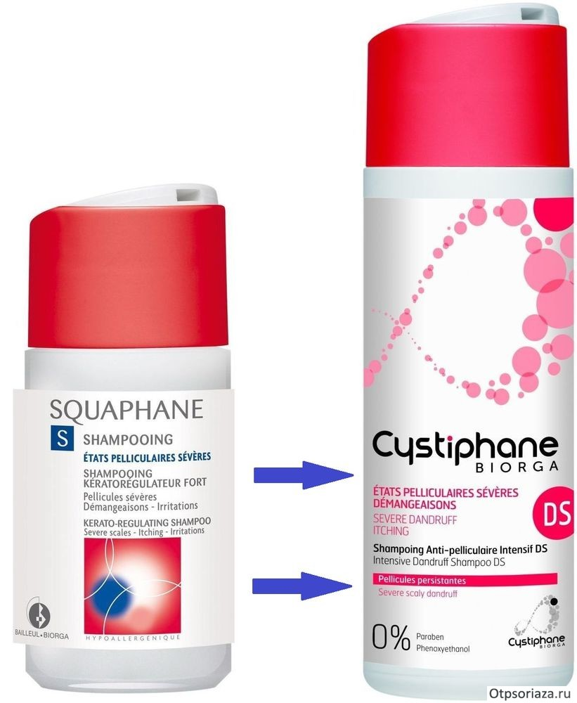 ТОП-10 шампуней от псориаза волосистой части головы