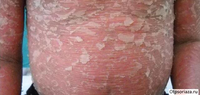 Псориаз эритродермический