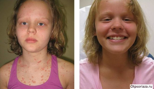 Девочка после лечения псориаза