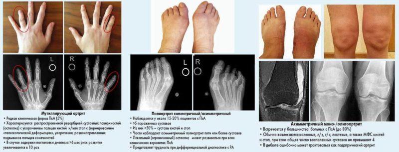artrit-paltsev-pri-psoriaze