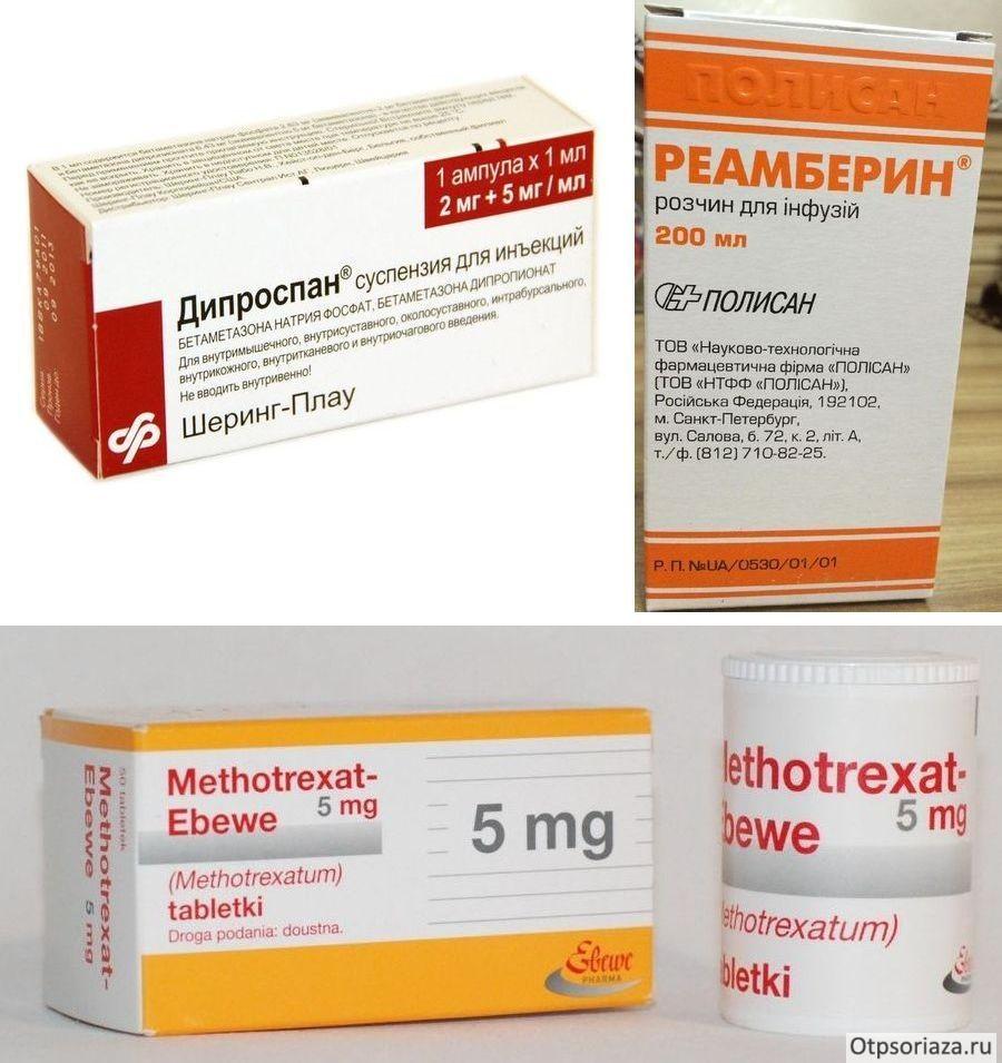 Псориаз на голове - причины симптомы лечение