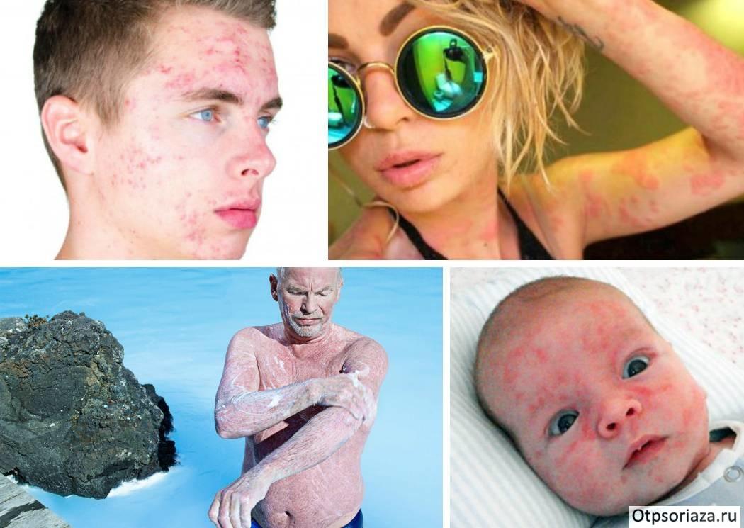 Псориаз это наследственная болезнь