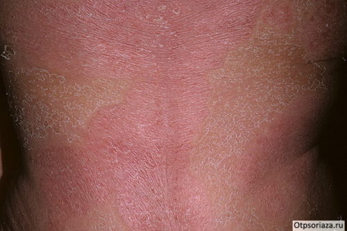 Псориаз - эритродермия