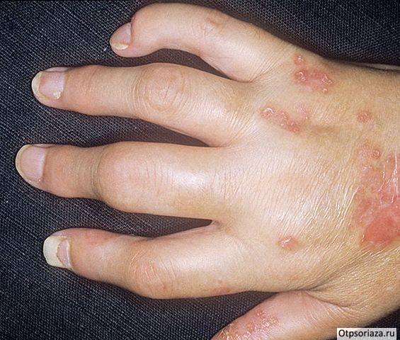 Псориаз суставов пальцев кисти руки