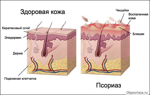псориаз и нормальная кожа