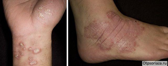 Псориаз на ногах и ступнях фото начальной стадии причины и лечение
