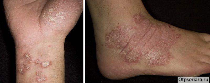 Псориаз на ногах и стопах - лечение причины возникновения фото начальной стадии