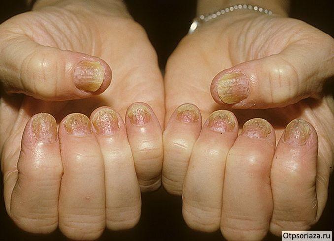 Причины развития псориаза