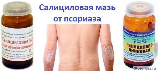Негормональные мази от псориаза