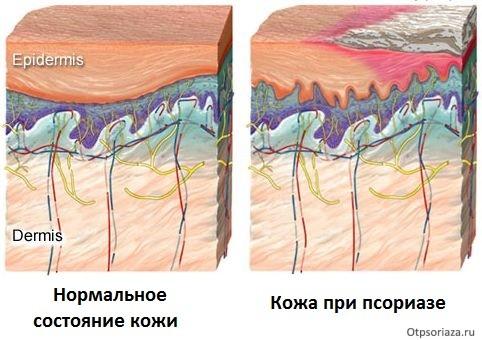 Состояние обычной кожи и кожи при псориазе