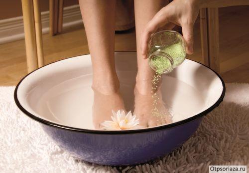 Ванны и обмывания от псориаза