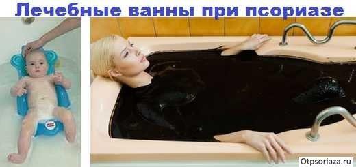 Лечение псориаза ваннами