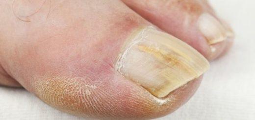 Как вылечить псориаз ногтей?