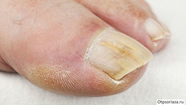Псориаз ногтей симптомы и лечение народными средствами