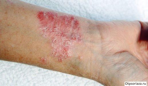 Симптомы псориаза: причины, симптомы и 105 фото как выглядит начальная стадия заболевания