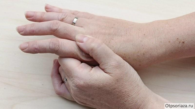 Псориатический артрит на руке