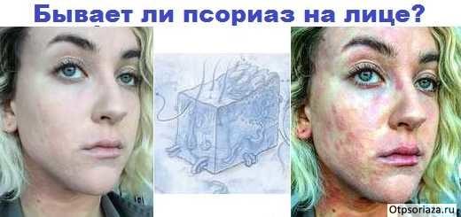 Псориаз кожи лица