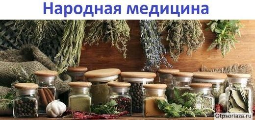 Лечение псориаза народными средствами